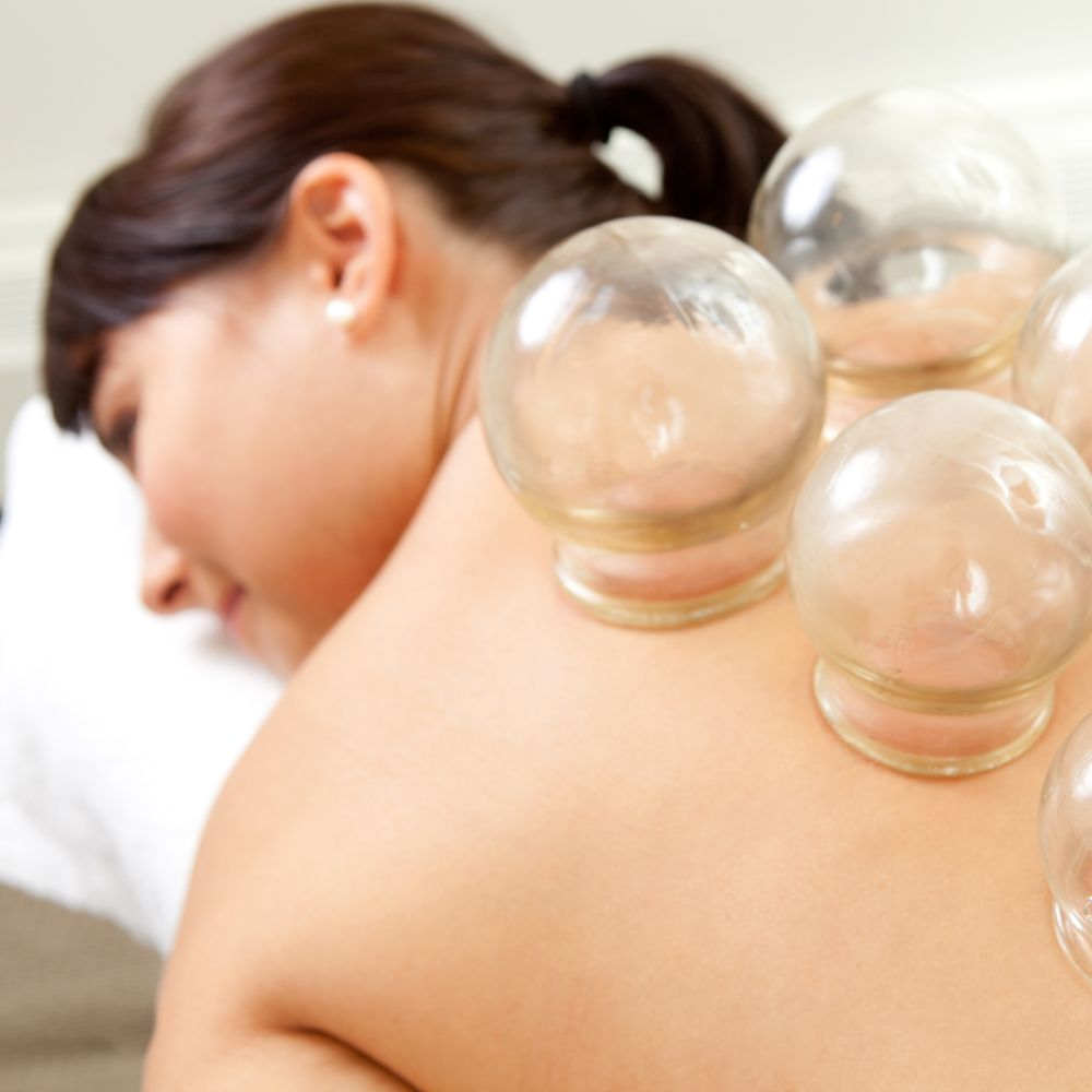 Cupping and Gua Sha link - Woman Undergoing Cupping Therapy