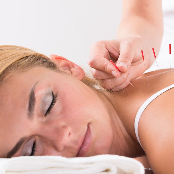 Woman Enjoying Acupuncture Session